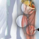 tecnica per stimolare i muscoli