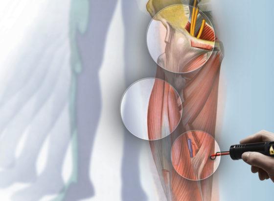 Hilterapia®, la novità più efficace per combattere e vincere il dolore, senza dolore