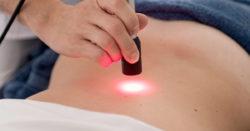 terapia mediante l'utilizzo di tecniche laser
